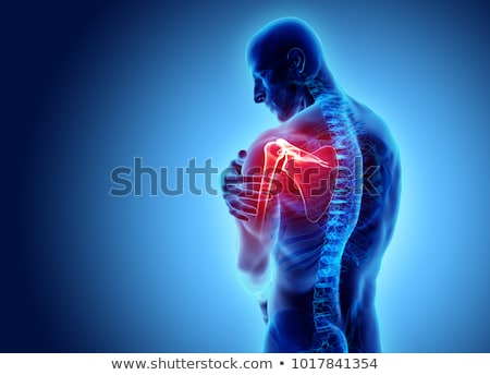 Arthritis. Medical Concept on Blue Background. Stock photo © tashatuvango