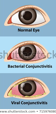 different stages of conjunctivitis in human eye stock photo © colematt
