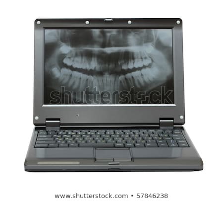 small laptop with dental picture of jaw Stock photo © Mikko