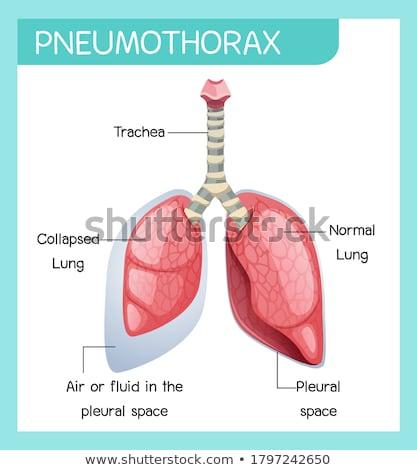 A Human Anatomy of Pneumothorax  Stock photo © bluering