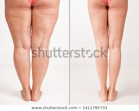 Treatment Of Varicose Before And After Stock photo © AndreyPopov