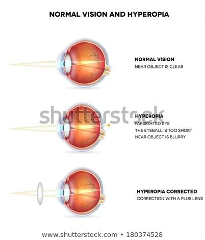 Normal visão ilustração lente anatomia Foto stock © Tefi