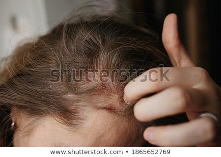Young caucasian doctor scratching her head. Stock photo © RAStudio
