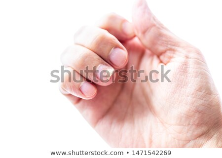 Psoriasis on Fingernails Isolated White Background Stock photo © Qingwa