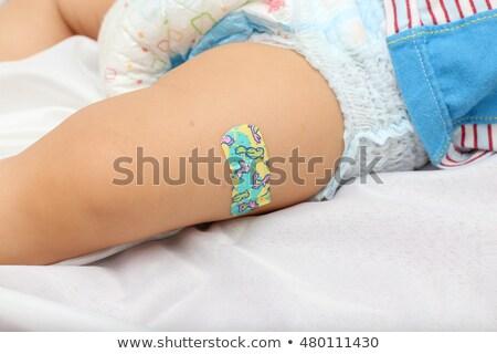 Bebek bacak sıva çocuk kırık oturma Stok fotoğraf © IS2