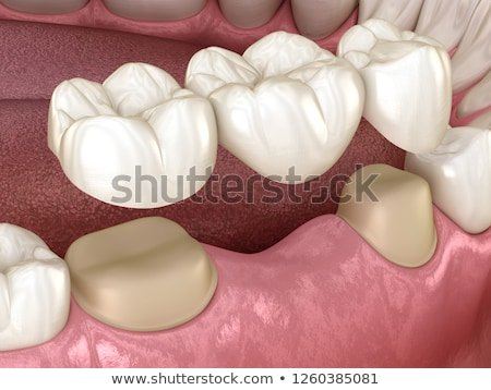 Dental bridge stock photo © bluering
