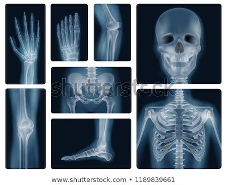 Xray görüntü insan ayak 3d illustration tıbbi Stok fotoğraf © tussik