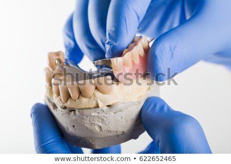 Prothèse manquant dents spéciale peuvent médicaux Photo stock © Lighthunter