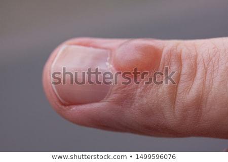 Humaine doigts joints macro 40 années vieux Photo stock © smithore