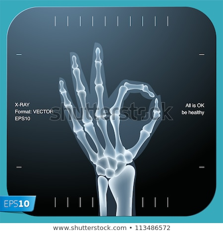 X Ray of The Right hand Stock photo © Klinker