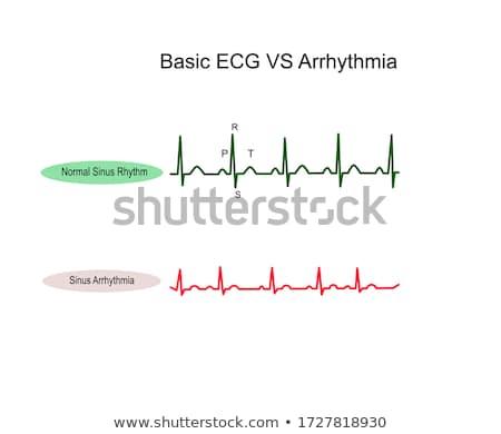 Corazón pulso ritmo pulsante gráfico resumen Foto stock © alexaldo