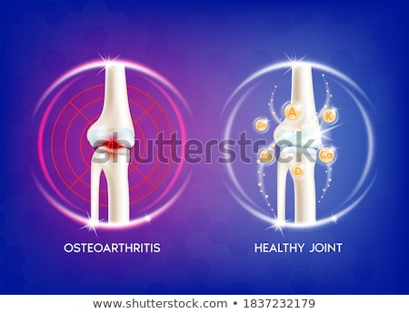 Arthritis Concept. Stock photo © tashatuvango