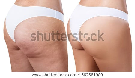 A Comparison of Women with Cellulite Stock photo © bluering