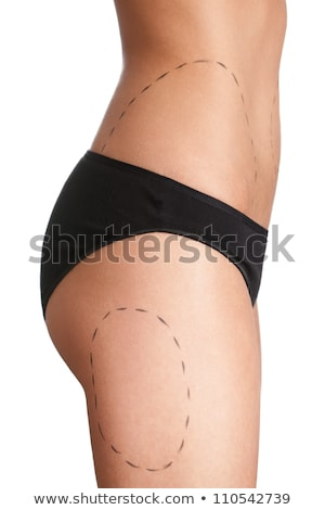 Stockfoto: Body Correction With The Help Of Plastic Surgery On White Background Side View