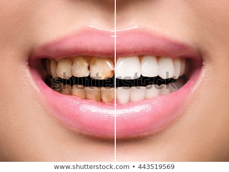 Woman Teeth Before And After Dental Treatment Stock photo © AndreyPopov