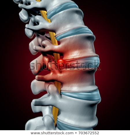 Human Herniated Disk Stock photo © Lightsource