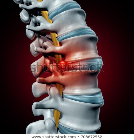 Insan disk omurga ağrı tanı belkemiği Stok fotoğraf © Lightsource