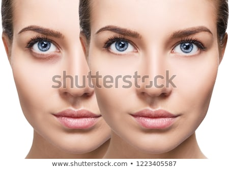 Bruised eye after surgery Stock photo © Hofmeester