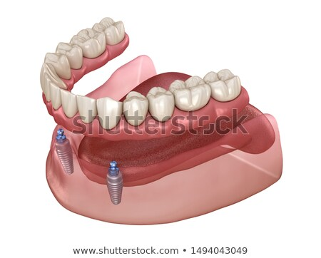 Ball attachment for denture Stock photo © Lighthunter