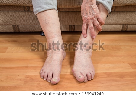 woman holding painful toenail stock photo © andreypopov