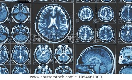 emberi · agy · mágnes · agy · erő · orvosi · tudomány - stock fotó © andromeda