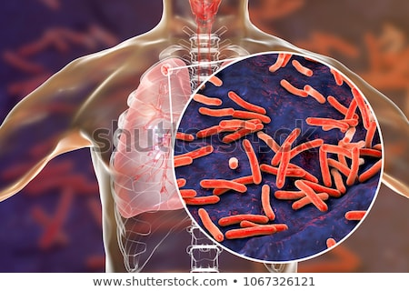 tuberculosis stock photo © chrisdorney
