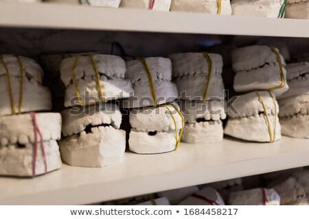 periodontitis dental anatomy stock photo © tefi