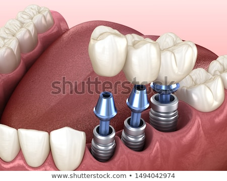 Tooth Implant Stock photo © Lightsource