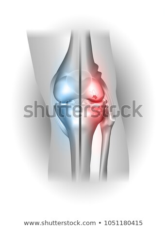 damaged and healthy joint design stock photo © tefi