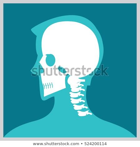 X ray neck and Jaw Stock photo © Klinker