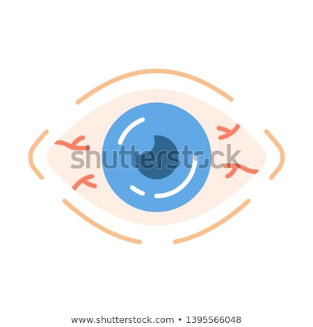 Conjunctivitis and Red Bloodshot Eyes, vector Stock photo © jiaking1
