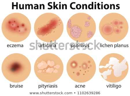A Vector of Pityriasis on Human Skin Stock photo © bluering