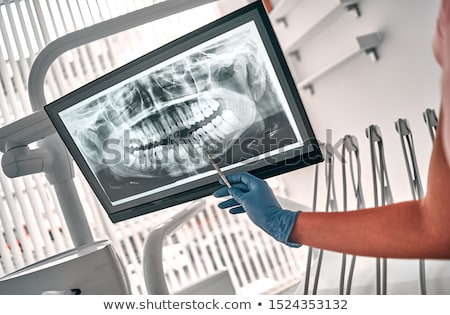 xray · kıdemli · doktor · tablet · ekran - stok fotoğraf © hofmeester