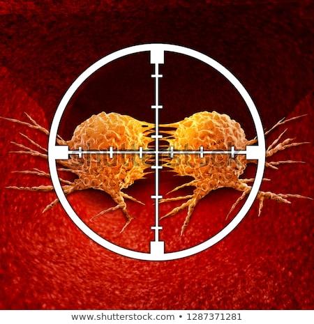 がん 医療 療法 鉛筆 図面 ストックフォト © Lightsource