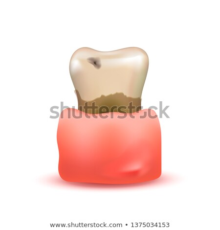 Sick and rotten realistic human tooth with caries in sore gum isolated on white Stock photo © evgeny89