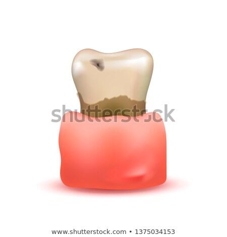 Krank realistisch menschlichen Zahn wund Stock foto © evgeny89