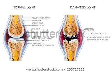 detalhado · ilustração · saudável · articulação · saúde - foto stock © tefi