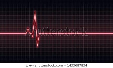 Stock photo: Heart monitor screen