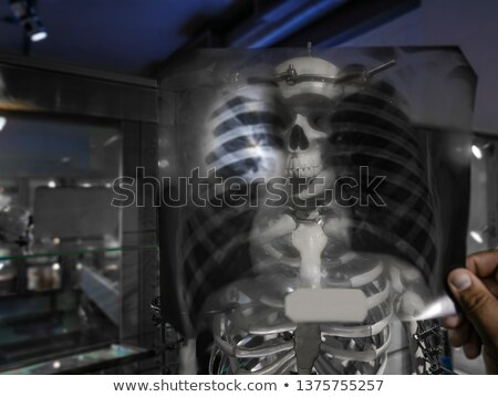 Doctor examine X ray of shoulder, neck and Jaw Stock photo © Klinker