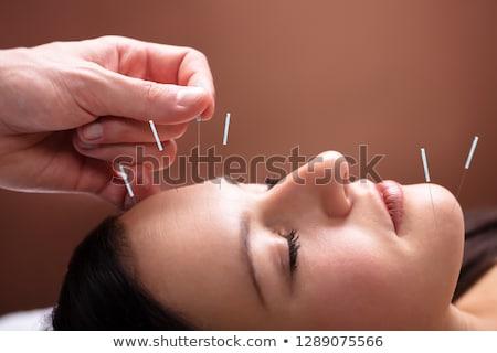 Foto stock: Mujer · acupuntura · tratamiento · cara · primer · plano · spa