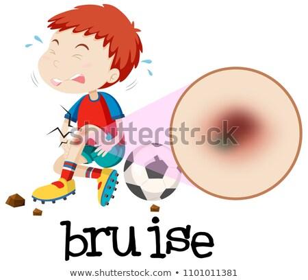 Fiatal srác horzsolás illusztráció művészet fájdalom személy Stock fotó © bluering
