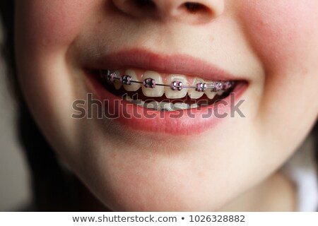 photo of young female student or school girl with dental braces stock photo © deandrobot