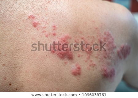 chicken pox on human skin Stock photo © taviphoto