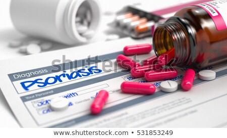Psoriasis Diagnosis. Medical Concept. 3D Render. Stock photo © tashatuvango