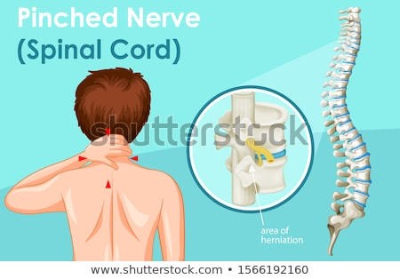 Diagram showing pinched nerve in human  Stock photo © bluering
