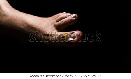Stock photo: Broken ill nail on leg