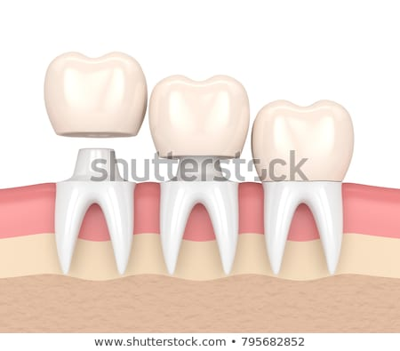 a dental crown replacement stock photo © bluering