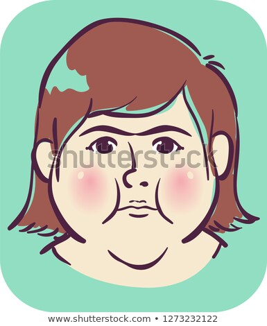 少女 症状 顔 実例 赤 女性 ストックフォト © lenm