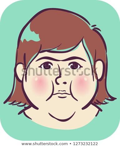 Girl Symptom Puffy Round Face Illustration Stock photo © lenm