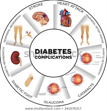 Diabeticus oog diagram glaucoma gezonde Stockfoto © Tefi